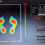 インソール測定(Feet in Design)